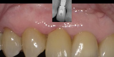 Implantate Kronen Zahnersatz Zahnarztpraxis Zahnarzt Dr. Misovic