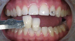 Bleichen der Zähne - Zusätzliche Informationen - Misovic
