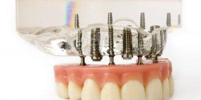 Implantate Prothese Zahnarzt Misovic